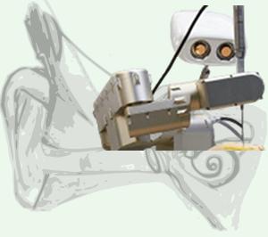 Cochlea Präzisionschirugie mit CamBar B1